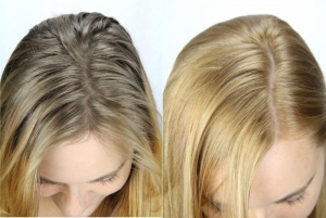 before-after-hair-2